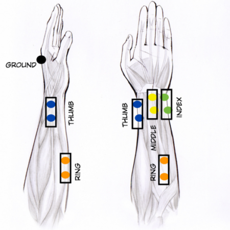 Open Source EMG Device for Controlling a Robotic Hand